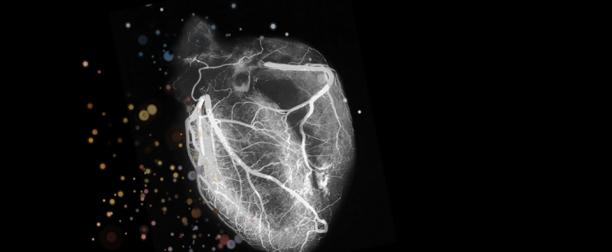 Ecografie Cardiaca